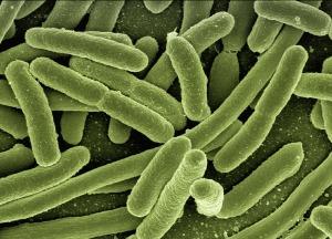 koli-bacteria-123081_1280